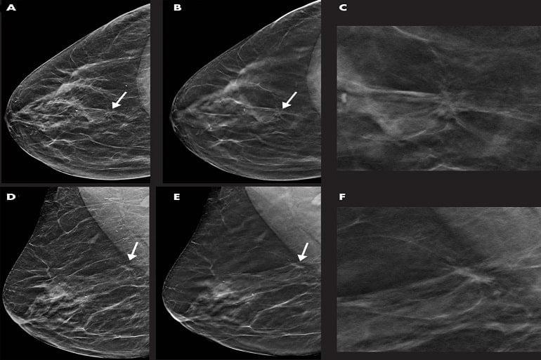 ماموگرافی سه بعدی