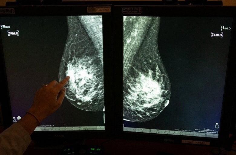 توده های بدخیم یا سرطانی در ماموگرافی سفید هستند