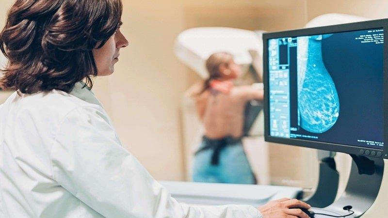 ماموگرافی چیست